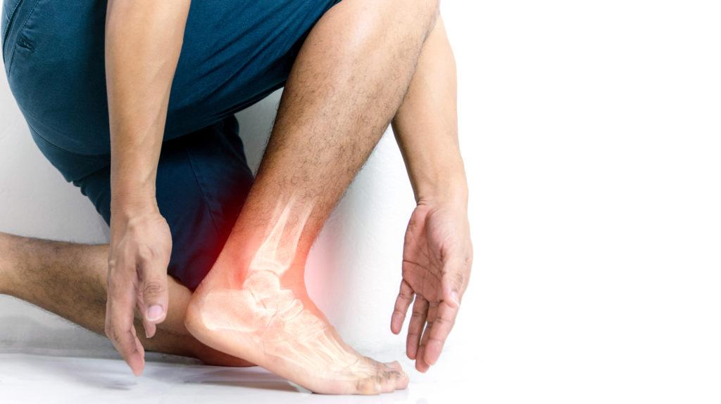 Articolazione della caviglia infiammata